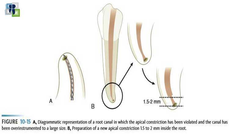 مشاكل علاج عصب الأسنان وتدبيرها : التحضير غير الملائم للقناة