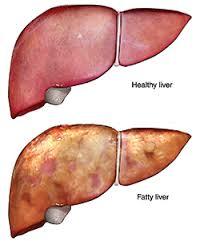 Cara Menyembuhkan Fatty Liver (Perlemakan Hati) Secara Alami Pada Anak Dan Dewasa