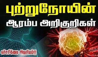 Cancer Symptoms in Tamil | Early signs of cancer | warning signs of cancer