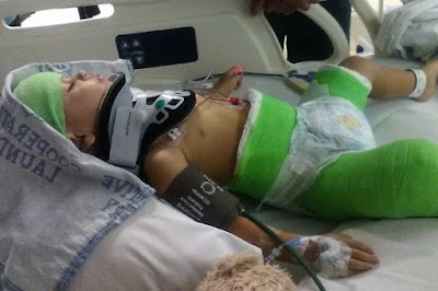 2 year old boy left in body cast and 30 stitches to the head after his dad tried to kill kim