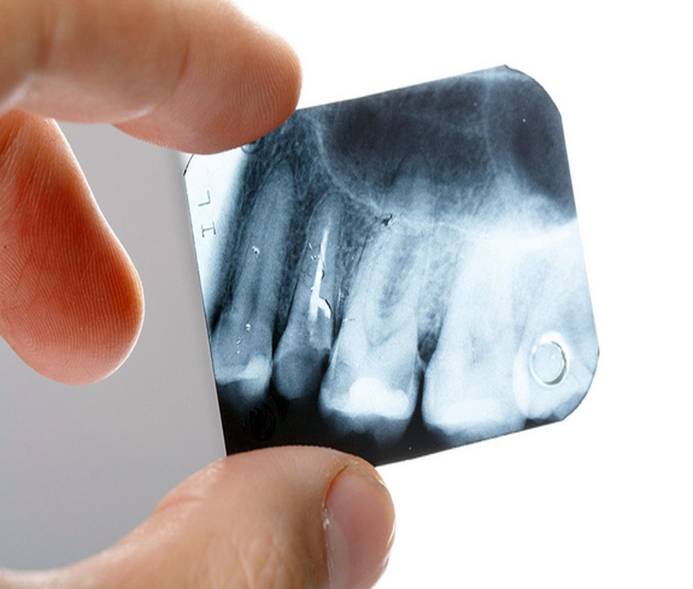 radiologia-odontologica