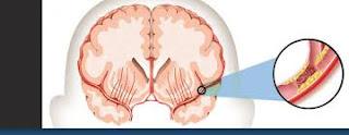 Pengobatan Alami Penderita Stroke Ringan, apa obat herbal stroke sebelah kanan yang manjur?, Bagaimana Mengobati Sakit Stroke Ringan?