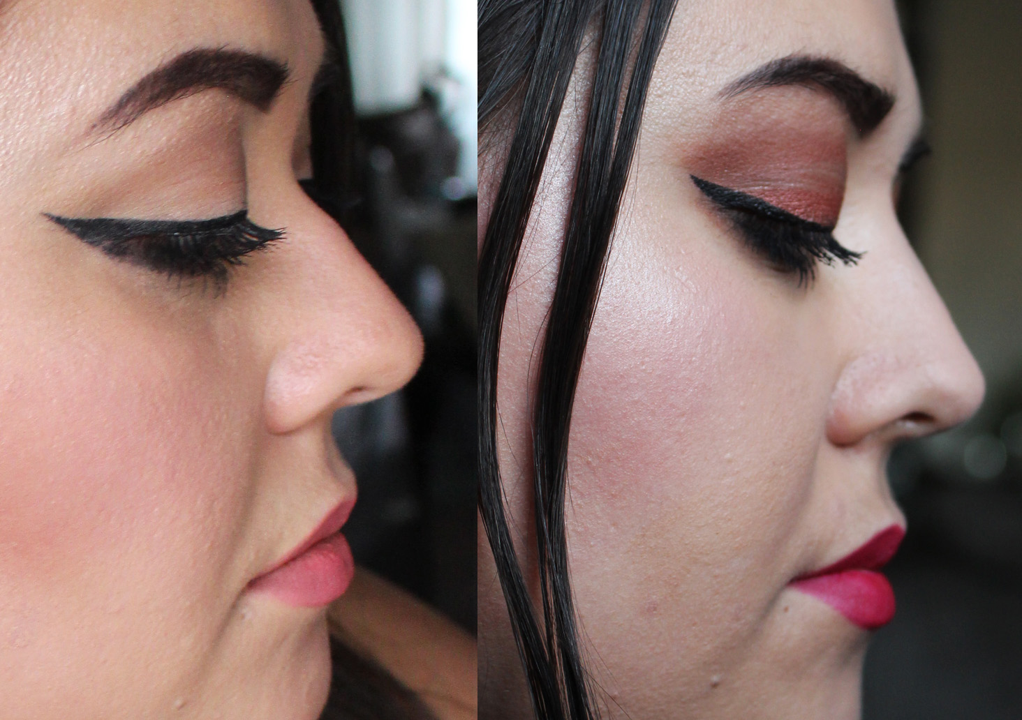 Non Surgical Nose Job at La Belle Forme Glasgow (Before and After)
