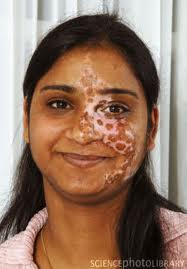 Expert Solutions Tips And Advice For Young Indians India Role Of Noni In Leucoderma Vitiligo
