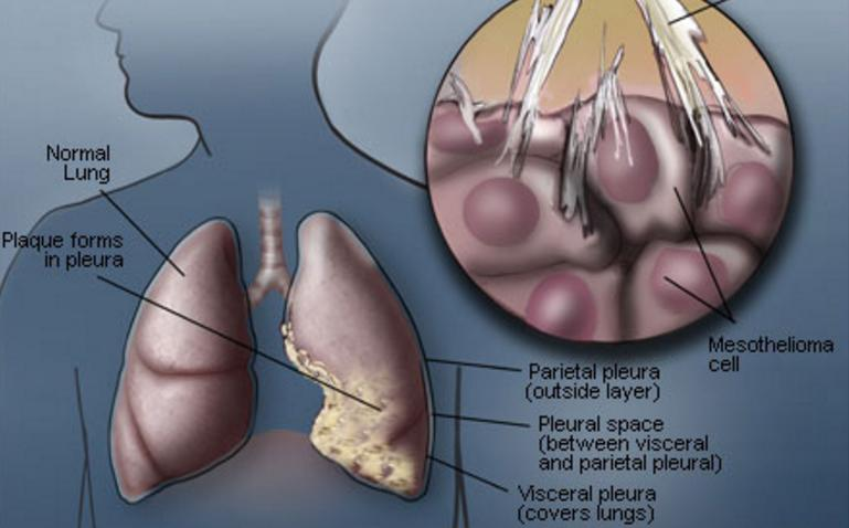 Pleural Mesothelioma Symptoms