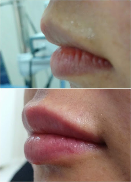 "What Is The ""Lip Filler Injection"" / ""Lip Filling"" / ""Lip Augmentation With Filler"" - Why Lip Filler Injection Be Done? - Which Lip Filler Materials Include? - Which is the Best Lip Filler Material? - Risks and Complications of Lip Filler Procedures - Risks of Lip Fillers: - Pay attention to the risks of silicon-containing fillers! - Biopolymers (Liquid Silicon) - Risks of Biopolymer Liquid Silicone Lip Injections - Lip Filler Injection Unfavorable Conditions - How Long Does The Lip Filler Effect Last? - How Much is the Lip Filler Injected For Per Procedure? - Lip Filler Misuse - Is Lip Filler Injection is Hurt or Painful? - How Many Minutes Does The Lip Filler Procedure Last? - Lip Filler Injection For Determining Cupid's Bow (Cupid's Spring) - After Care Instructions for Lip Fillers in Istanbul - Wait For 2 or 3 Weeks For Lip Filler Effect! - Cost Lip Filler Augmentation in Istanbul - Permanent Lip Filler Injection"