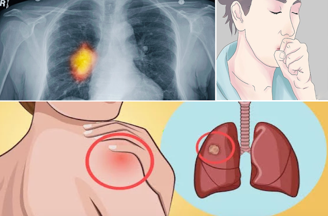 Early Warning Signs Of Lung Cancer You Shouldn't Ignore