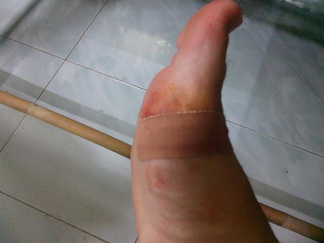 Порез на ноге