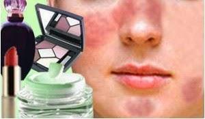 Cara Menghilangkan Mengobati dan Mengatasi Alergi Wajah Akibat Kosmetik
