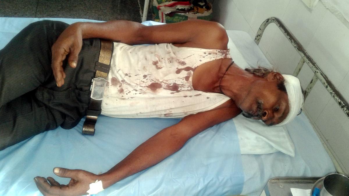 Jhabua News-जमीन विवाद को लेकर छोटे भाईयों ने मिलकर बड़े भाई और उसके पुत्र के साथ की मारपीट