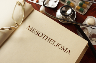 How to Cope With a Terminal Mesothelioma Relative