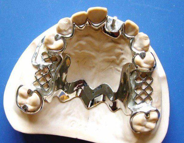 Clinical Stages In Removable Partial Denture Construction