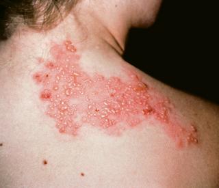 Pengalaman Sembuh dari Sakit Herpes Zoster / Cacar Ular