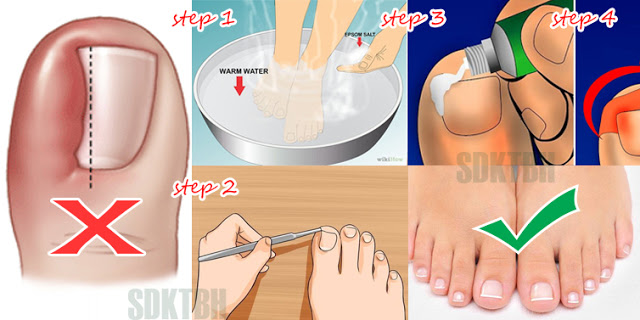 How To Remove An Ingrown Toenail Completely Naturally Without Any Surgical Procedure!