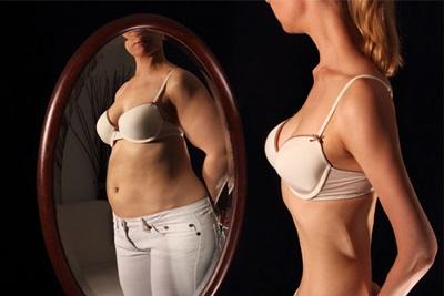 Fakta Tentang Anoreksia