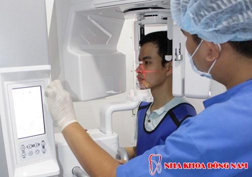 dịch vụ Trồng Cấy Ghép Implant -7