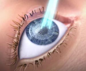 d96c4fdca6 Laser Διόρθωση μυωπίας-αστιγματισμού-υπερμετρωπίας Διαθλαστική χειρουργική