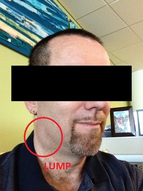 Cancer Fun Time!: Is That A Lump In Your Neck Or Are You