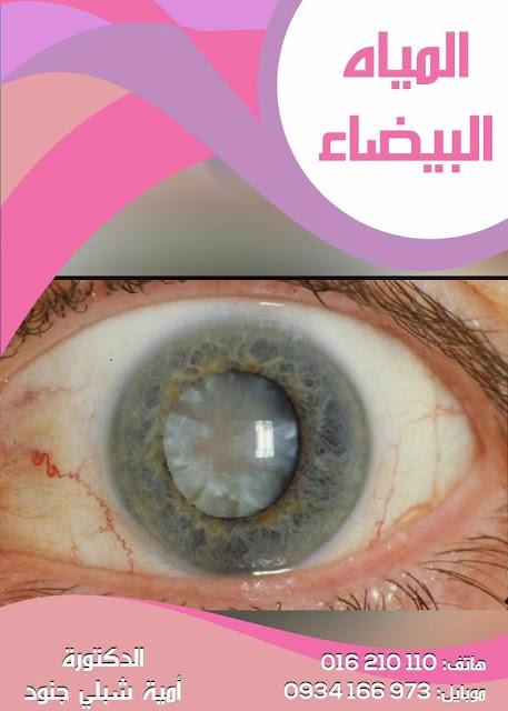 كيف تكتشف أنك تعاني من مياه بيضاء بالعين ؟