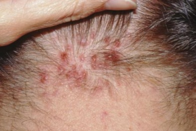 Natural Remedies For Follicular Lymphoma