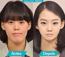 c7183832f Veja abaixo exemplos de pessoas que fizeram cirurgias por causa de má  formação no maxilar e no queixo.