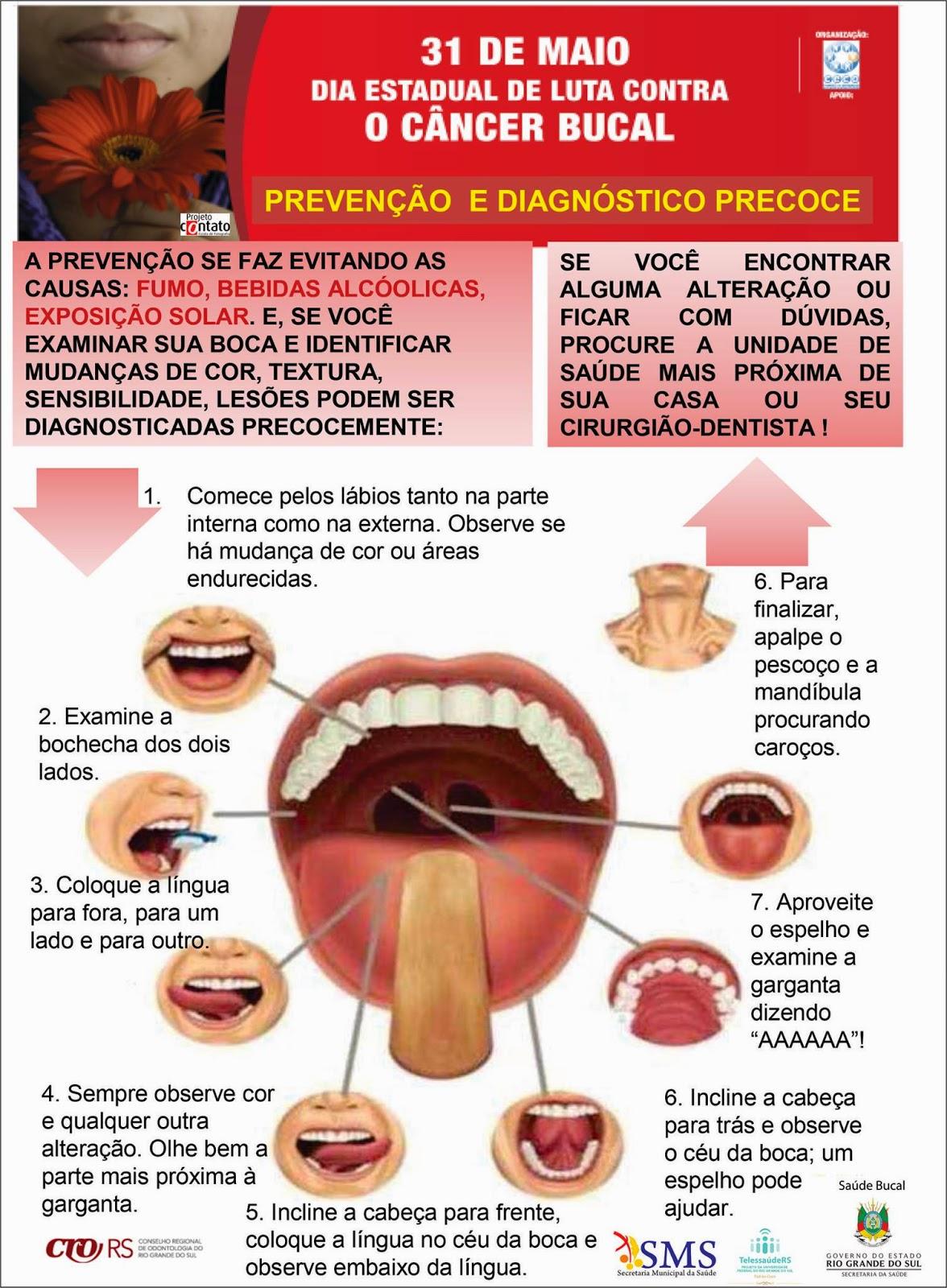 Cancer bucal en venezuela Ce sunt aftele şi ulceraţiile mucoasei bucale?, Cancer bucal en venezuela