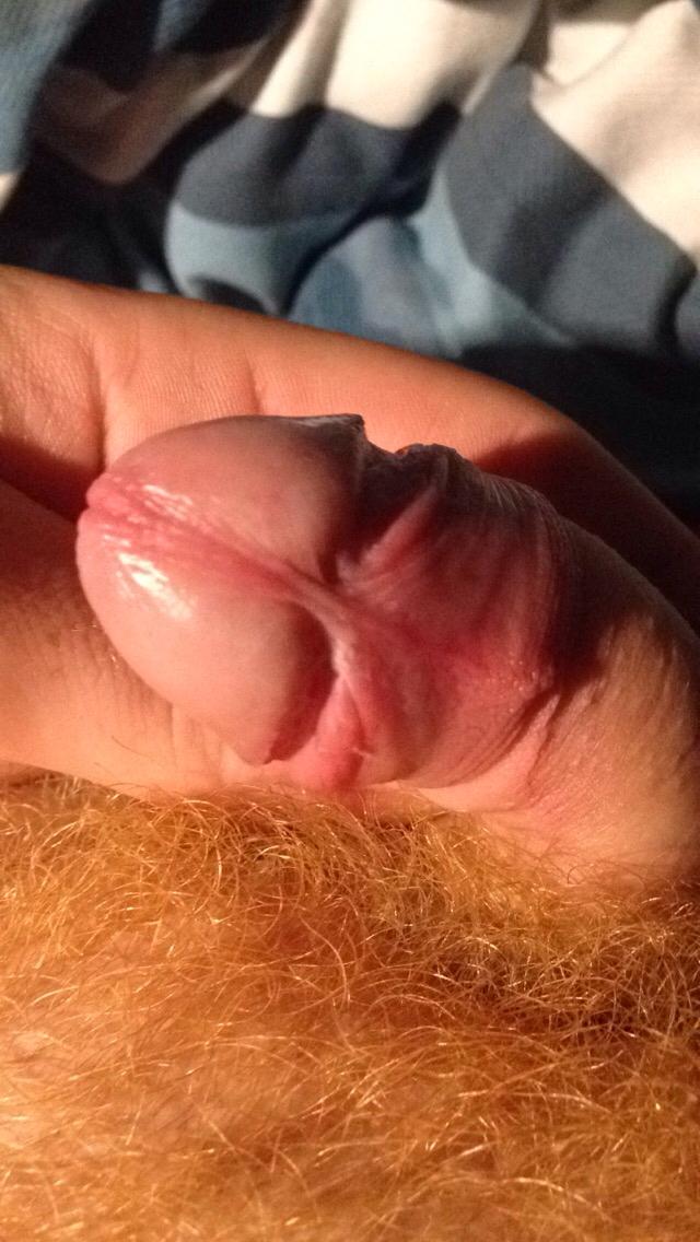 Tight frenulum penis apologise