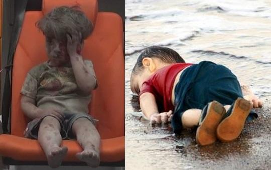 Siria, tutto l'orrore di Aleppo nella foto di un bambino ferito