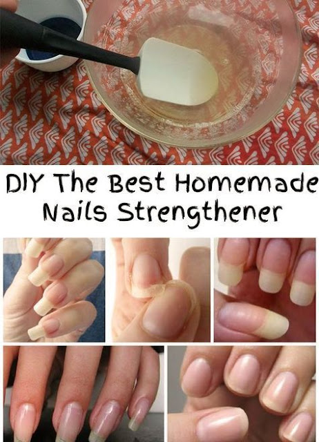 5 Home Remedies to Strengthen Fragile Nails