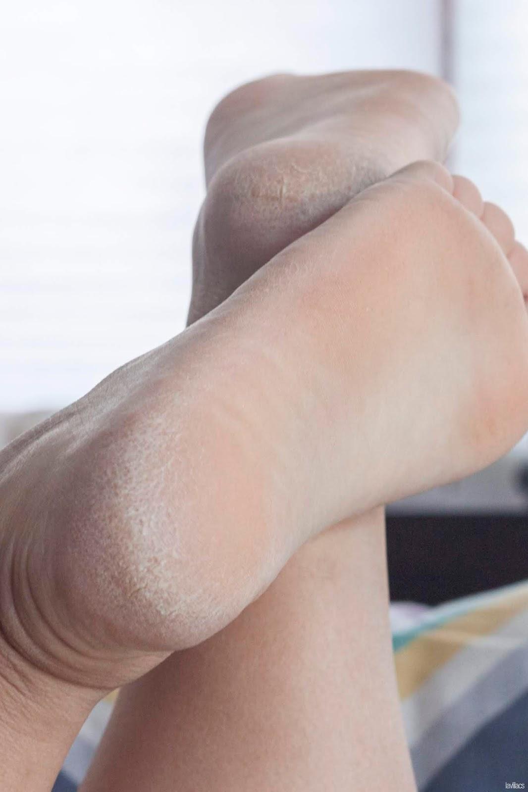 The Face Shop Smile Foot Peeling Before Closeup