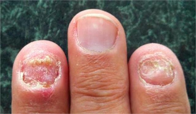 وصفات طبيعية لعلاج أمراض الأظافر