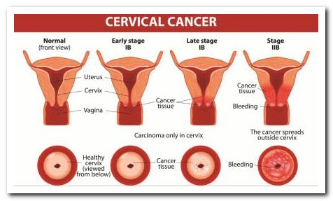 cervical cancer, stages