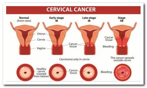cervical cancer, stages