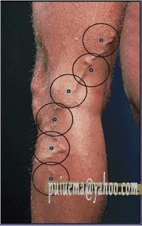 Esercizi per gambe malattie varicose