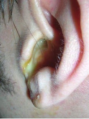 Chronic suppurative otitis media with purulent discharge chronically draining from the ear of this young man