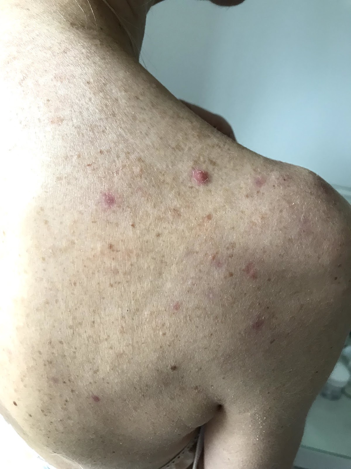 Cleared acne back after diet and homeopathy