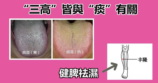 """""""三高""""皆與""""痰""""有關(百病皆由痰作祟)"""