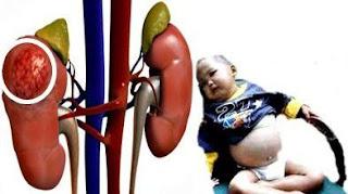Obat Jantung Bocor Herbal, Alami Dan Ampuh
