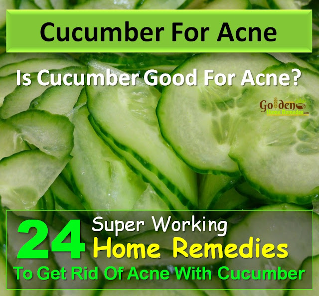 Cucumber For Acne, Cucumber Acne, Is Cucumber Good For Acne, How To Use Cucumber For Acne, How To Get Rid Of Acne, How To Get Rid Of Acne Fast, Home Remedies For Acne, Acne Treatment,