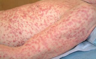 Efek Penyakit Sipilis Pada Wanita dans sipilis Sifilis