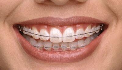 Fixed Orthodontic
