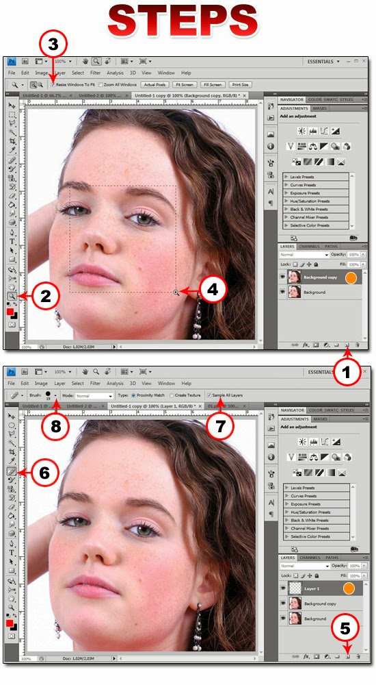 Cara Menghilangkan Jerawat Pada Foto/gambar