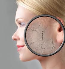 blanqueamiento de la piel