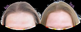 Resultado Shampoo Sem Sulfato Creoula - Antes e Depois (Low Poo)