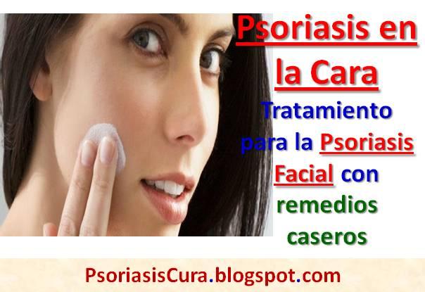 Las manchas sobre los codos la psoriasis