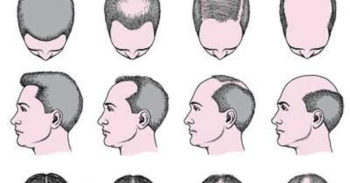 14 Cara Mengatasi Rambut Rontok Secara Alami Paling Ampuh ... aa43ec2b42