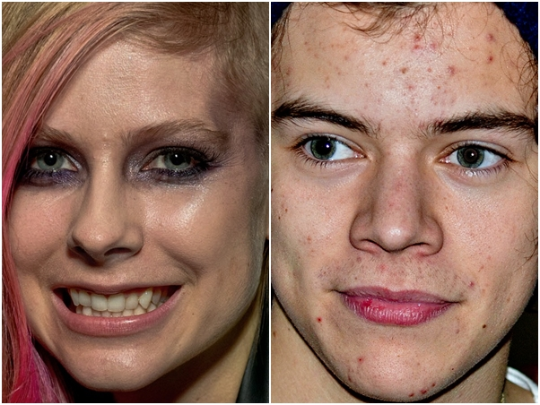 Avril Lavigne Harry Styles Sem Photoshop Famosos