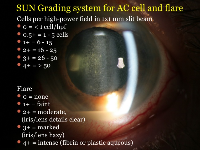 Grading of AC cells and flare
