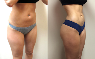 liposuction-before-after results