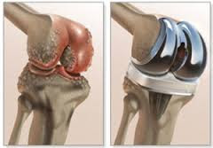 http://www.rathimedhospital.com/joint-replacement-surgery/